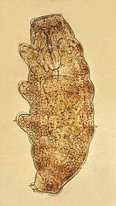 Macrobiotus hufelandi (Eutardigrada).