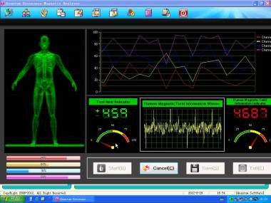 pantalla analizador cuántico